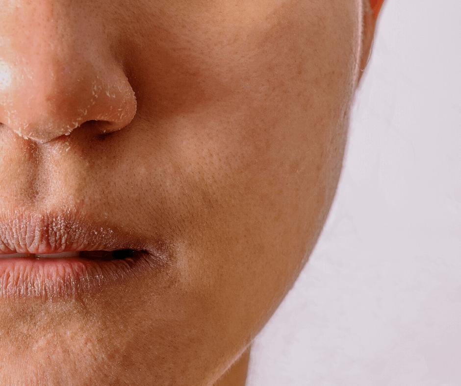 Salon no 83 Shirley Schoonheidssalon Purmerend Huidverbetering Gezichtsbehandeling Bindweefselmassage Voeding voedingsconsult vitaliteitsconsult Workshop Facial Fitness Cellics stralende huid Eczeem